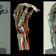 Inside Rodin's Hands: Art, Technology, and Surgery